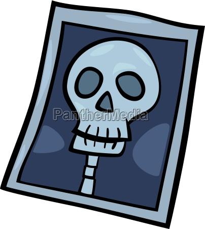 x ray photo clip art cartoon